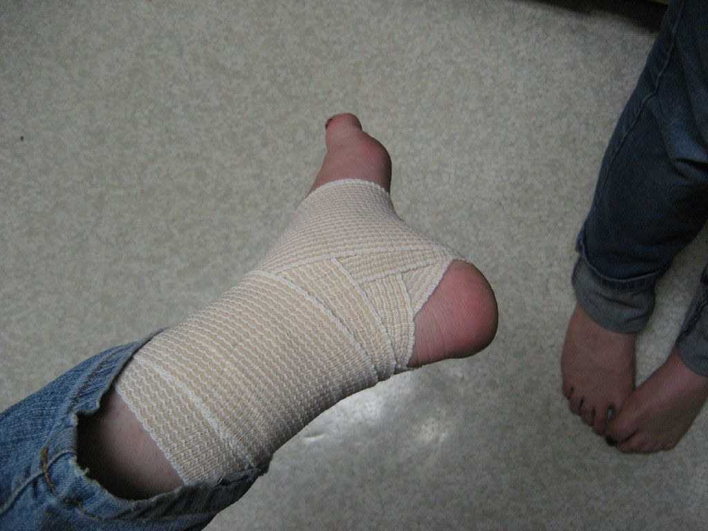 Bandaged, sprained ankle. What is good for sprains?