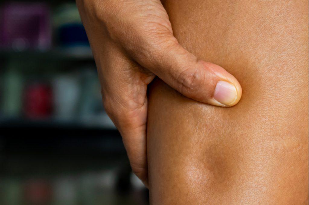 An close up of a leg with Edema.