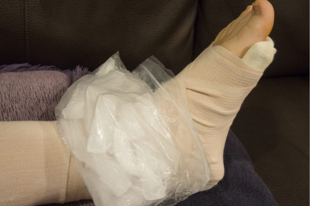Ice pack applied on the sprained ankle.